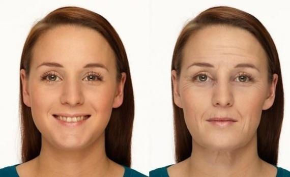последствия после отбеливания зубов