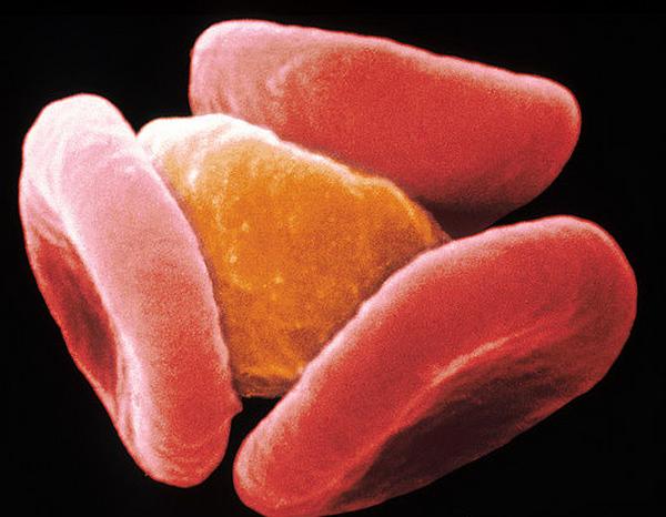 ddt vs malaria