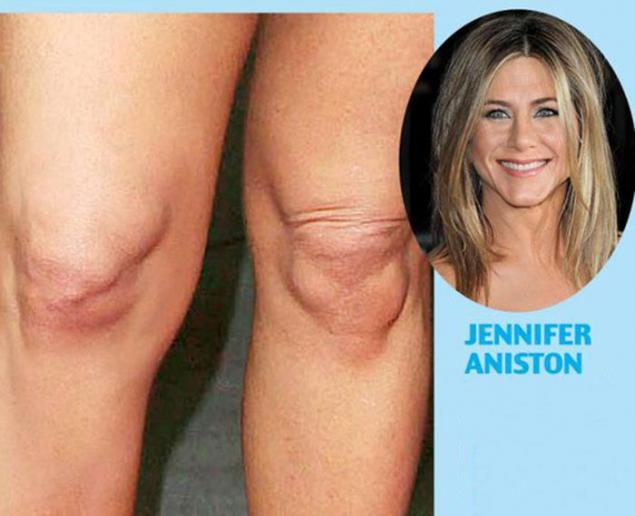 Celebrity Issue Knees