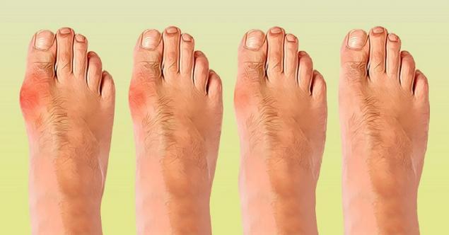 Болит косточка на ноге чем мазать