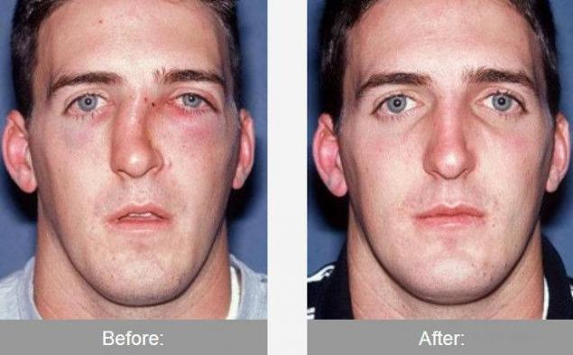 Broken Noses Before And After Broken Nose Rhinoplasty