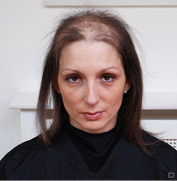 Фото причесок с редкими волосами
