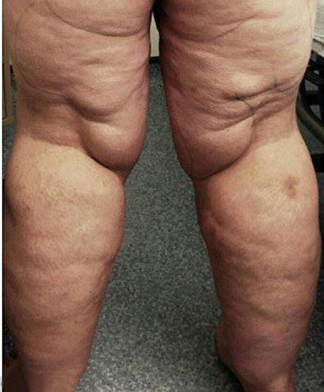 после липосакции ноги стали болеть