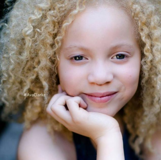 8 Year Old Girl Albino Conquer The World With Their