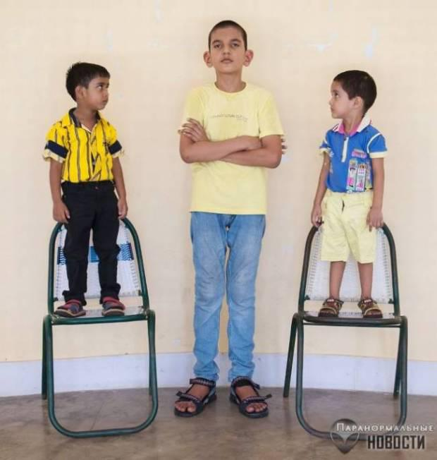Biggest Living Baby In The World The five-year giant. P...