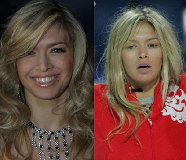 Российские звезды без макияжа до и
