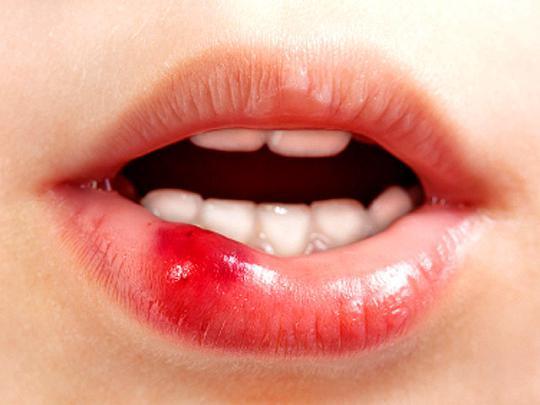 Как остановить кровь на губе в домашних условиях